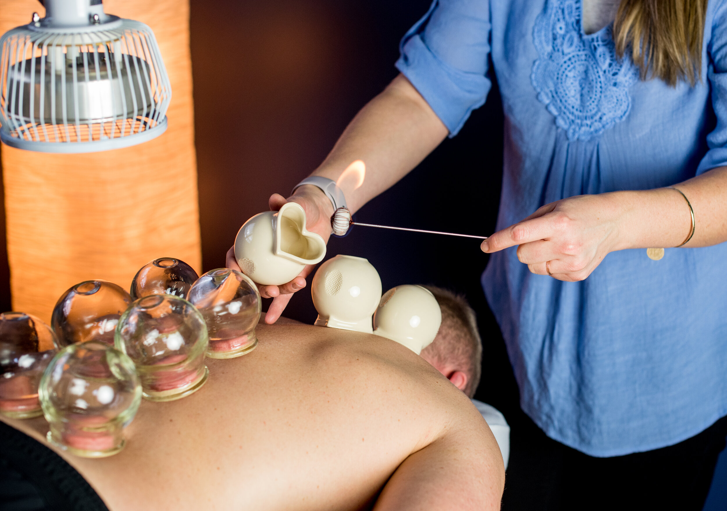 Emily performing cupping therapy on a patient