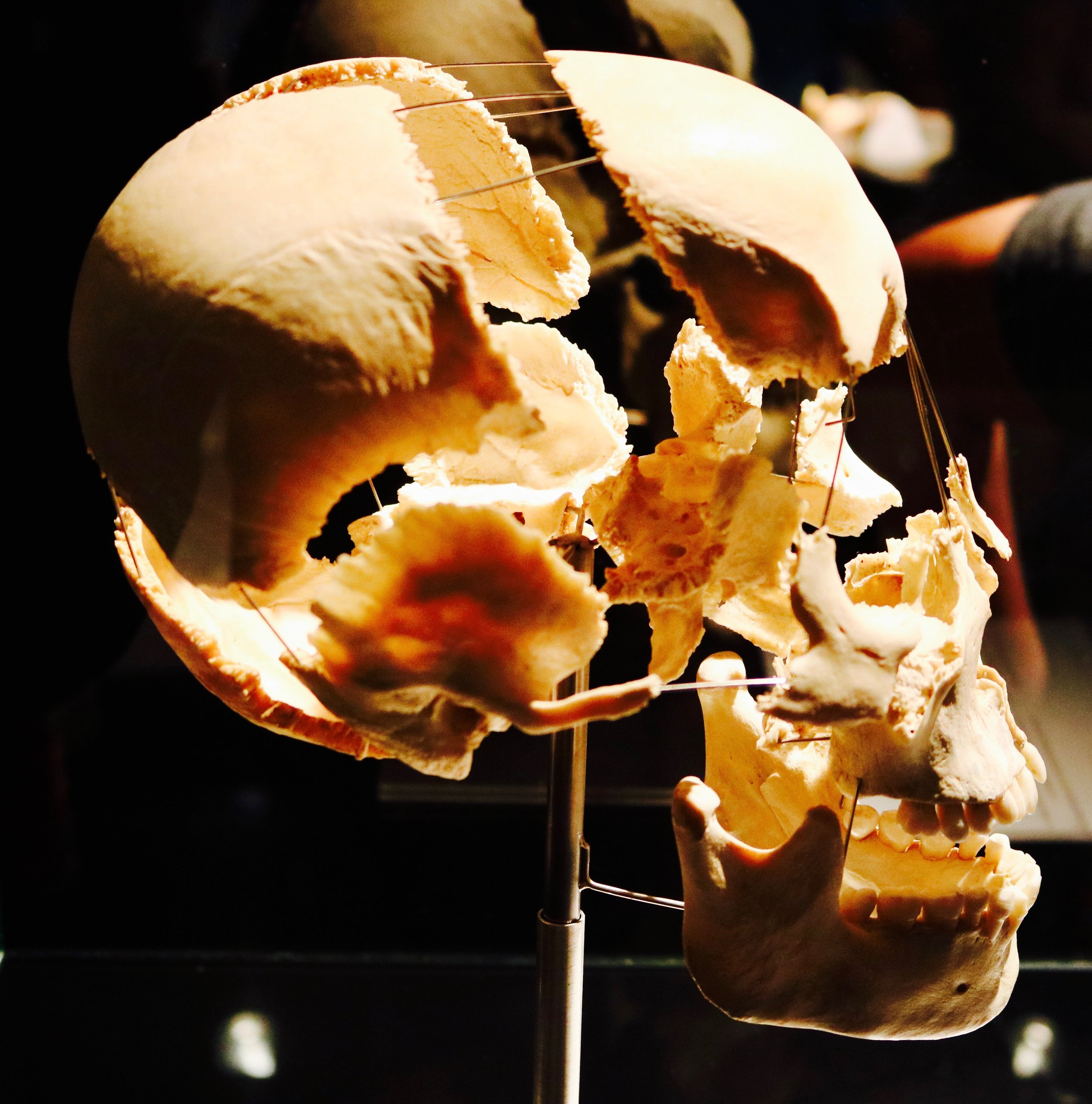 Expanded Skull: The skull protects the brain, gives shape to the head and face and houses the sensory organs. It's made of 22 single bones. As we get older, the loss of bone mass also affects our facial bones, playing a significant part in facial aging.  Photo by: DJB for TBOT