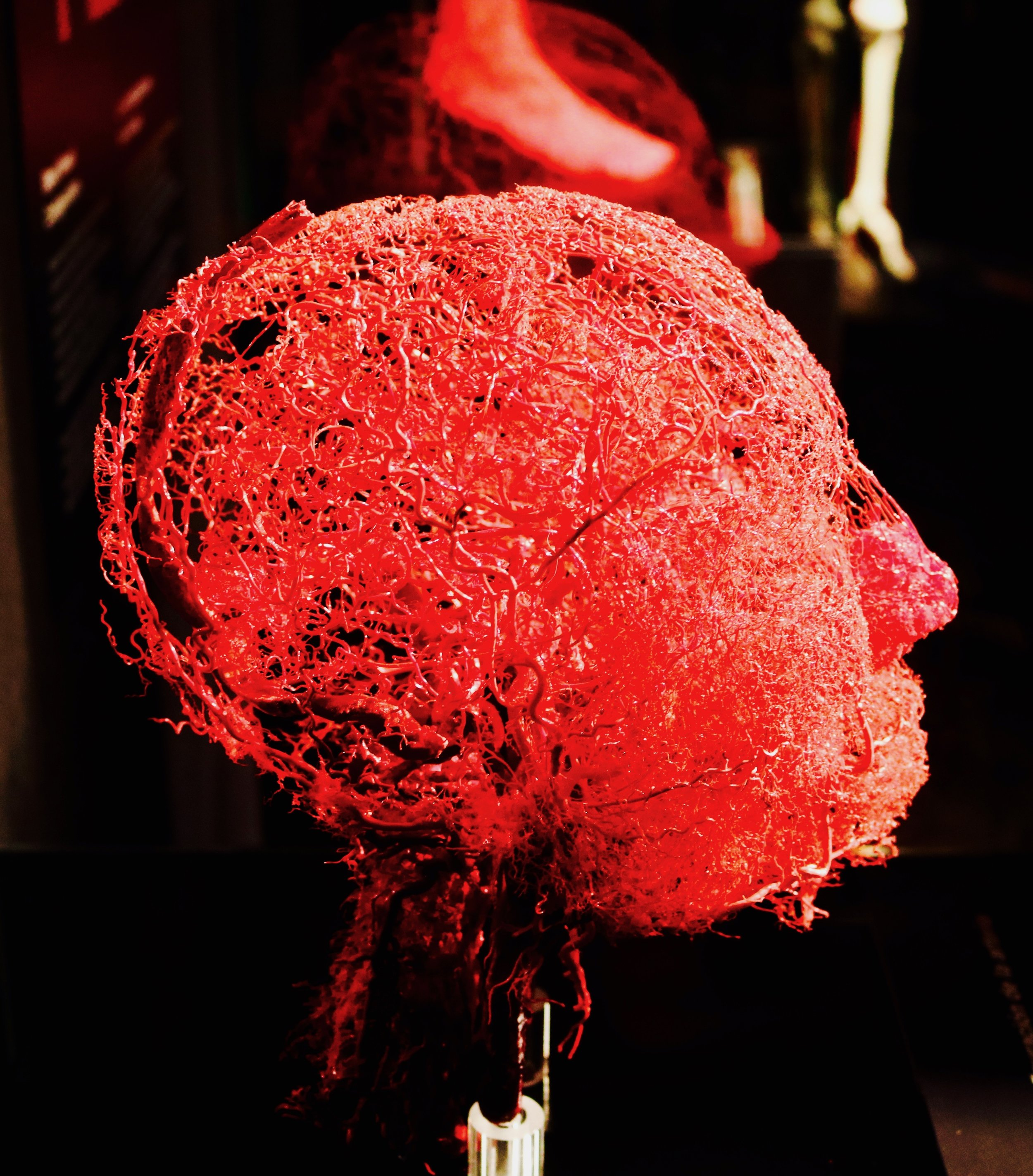 Blood Vessel Configuration of a Head: In the face there are numerous tiny blood vessels beneath the skin. Heat, intense physical activity, or stress hormones may cause these vessels to widen, which makes us turn red in the face.  Photo by: DJB for TBOT