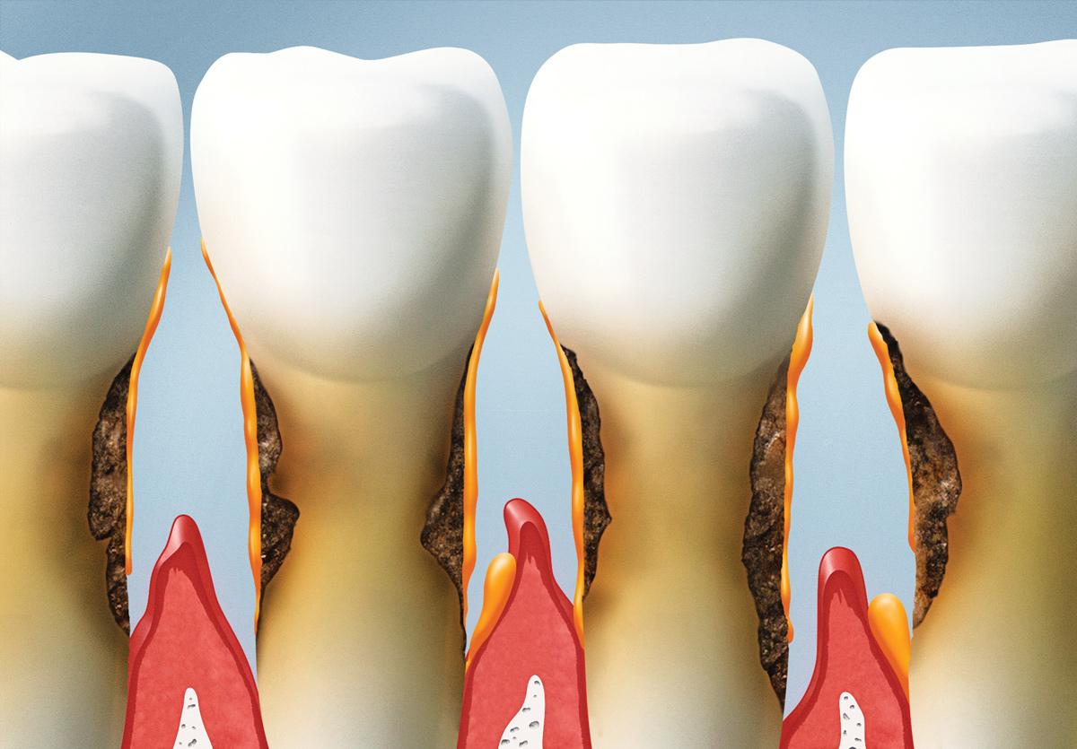 periodontal-therapy-in-greenville-sc-dental-office.jpg