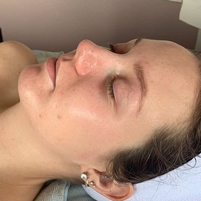 I am most definitely obsessed! Not only does her skin look amazing it literally feels like butter. It is so healthy it glows! Her skin journey consisted of a lot of alternating between chemical peels and microneedling.