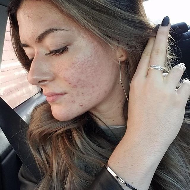 I'm surrounded by beauty inside and out. You can thank this transformation to facials and microneedling. I use two different microneedling techniques followed by hyaluronic acid. I get asked what depth I use when I micro-needle. I'm not paying attention to the depth as much as I'm paying attention to how the skin is reacting to the procedure. That will always be 100% more important then how far the needles are penetrating.