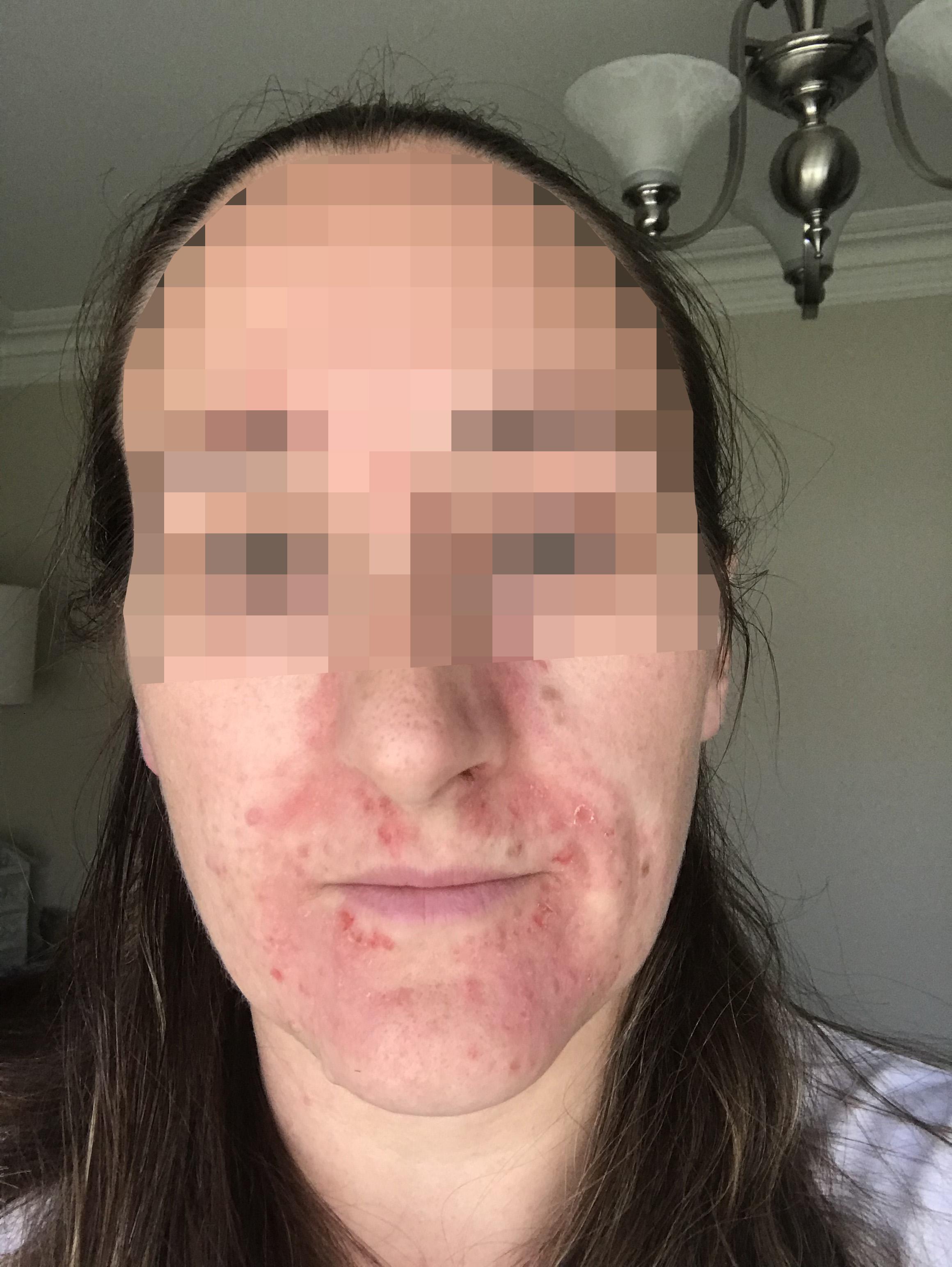 4 Cryo for skin healing.jpg