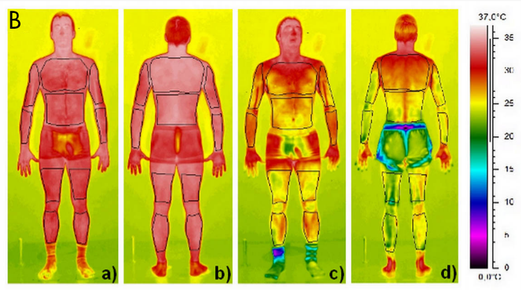 Group B) Liquid Nitrogen Partial Body Cryo Sauna: Clinical Study Results     Thermograms obtained immediately    before (a, b)    and    after (c, d   ) a Partial Body Cryo session.