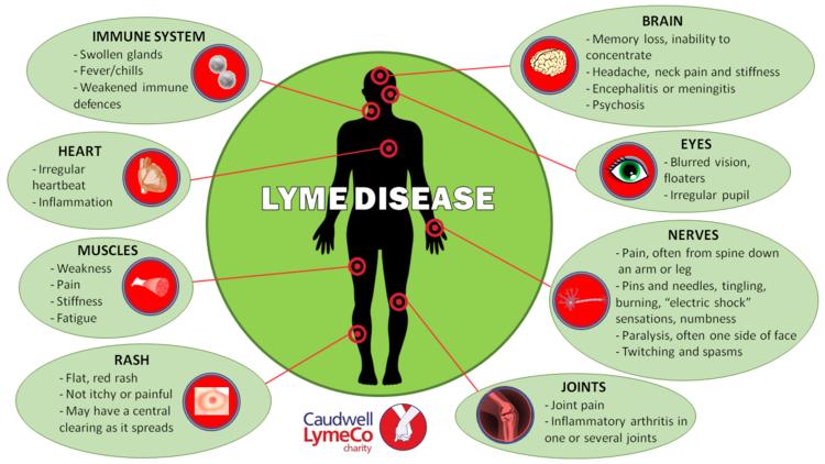 lyme-dsiease-symptoms.png