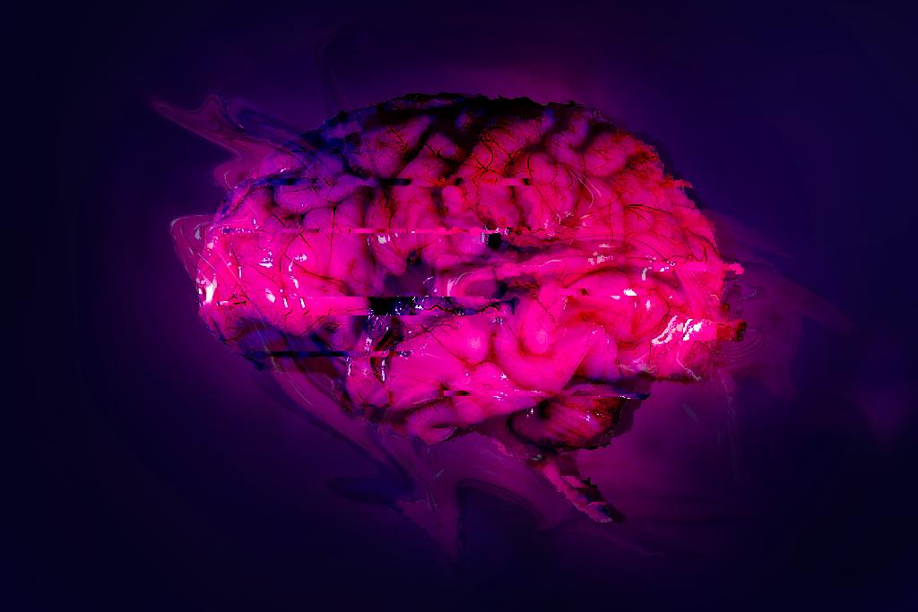 Traumatic Brain Injury - July 2018