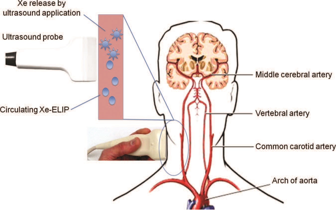 Xe-ELIP can be infused intravenously and ultrasound applied over the common carotid artery for ultrasound-triggered priminary Xe release from circulating Xe-ELIP into the brain .