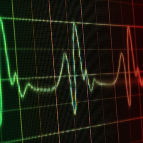 heart-monitor-174787161.jpg