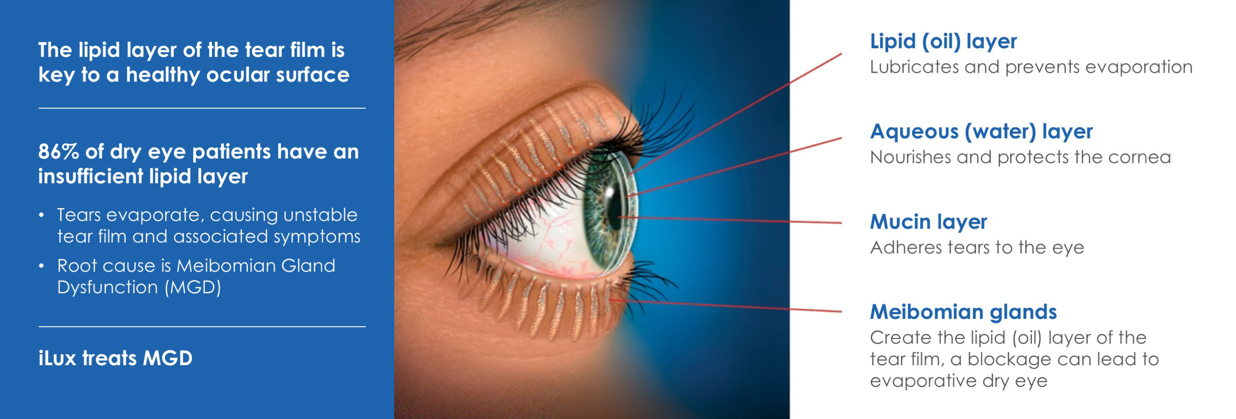 iLux® Treats The Leading Cause Of Dry Eye Disease
