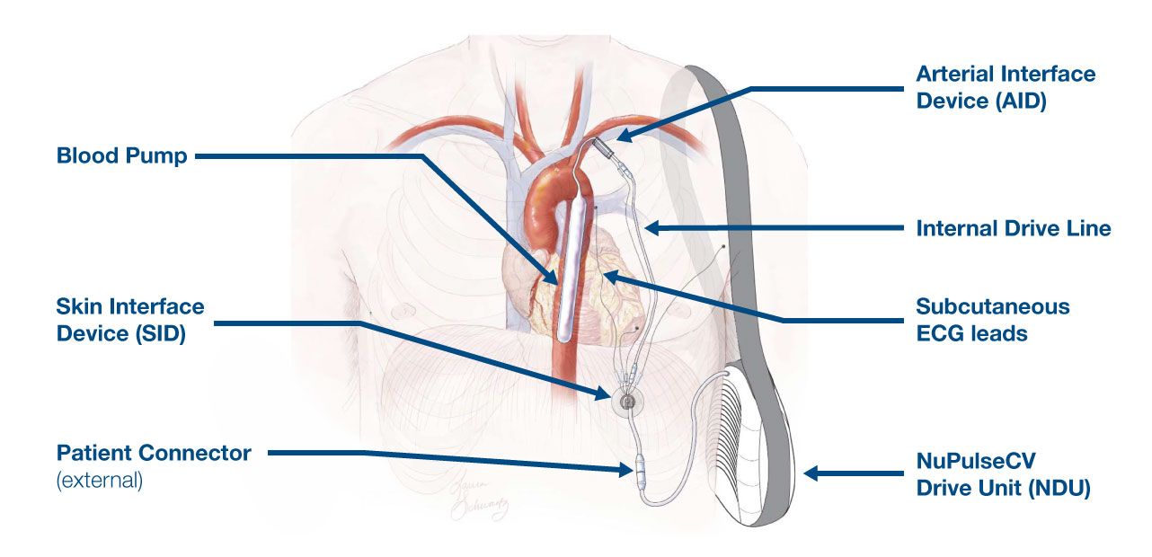 iVAS - Intravascular Ventricular Assist System