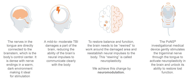 Tongue Based Neuromodulation