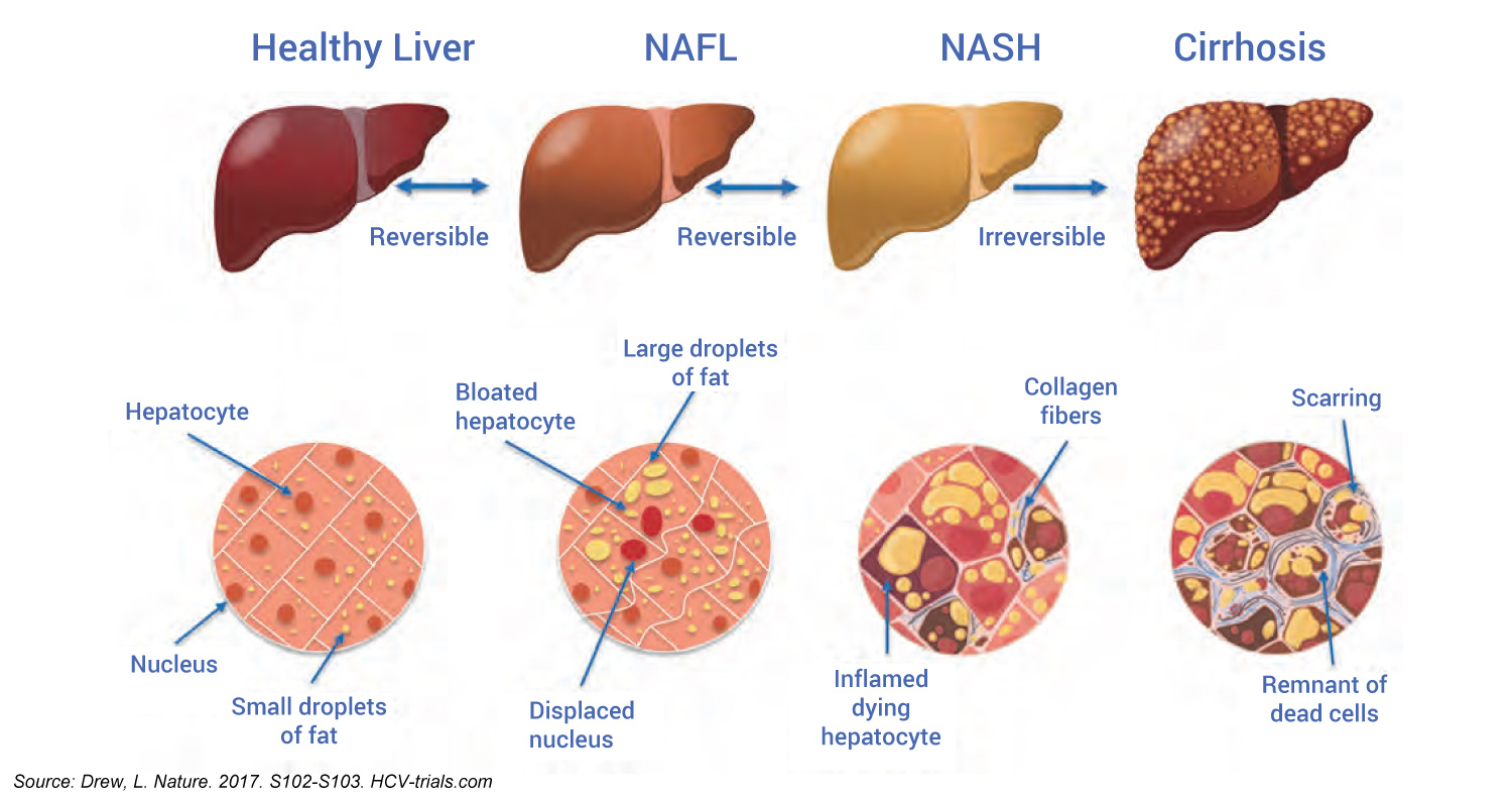 Bulk And Histological Features Of The Liver Across The NAFLD Spectrum