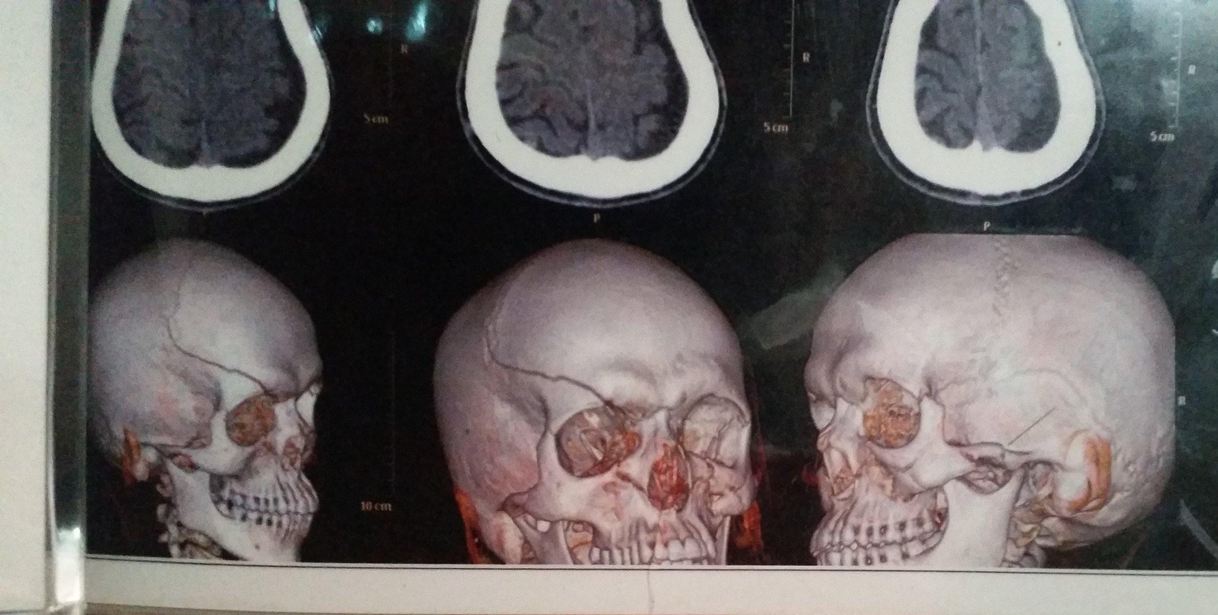Røntgenbilde av skallen til Arwin etter forrige møte med politiet for to år siden.