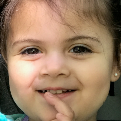 Safe for kids, ScarlessMD helped heal Karina's scar under her right eye (your left). After 2 months the scar is almost completely gone.