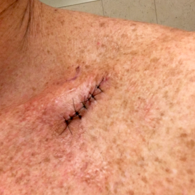 Mole removed from patient's shoulder.