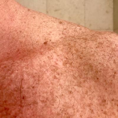 3 months after treatment began.