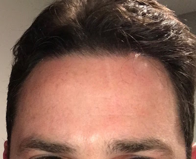 4 months after ScarlessMD treatment began, the scar is virtually gone.