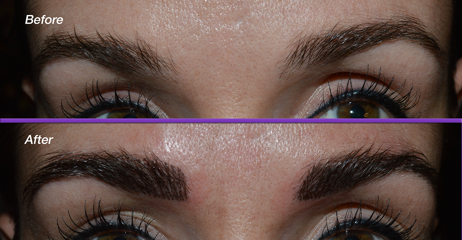 Brows-Before_After3.png