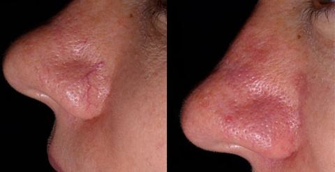 facial-thread-vein-removal.jpg