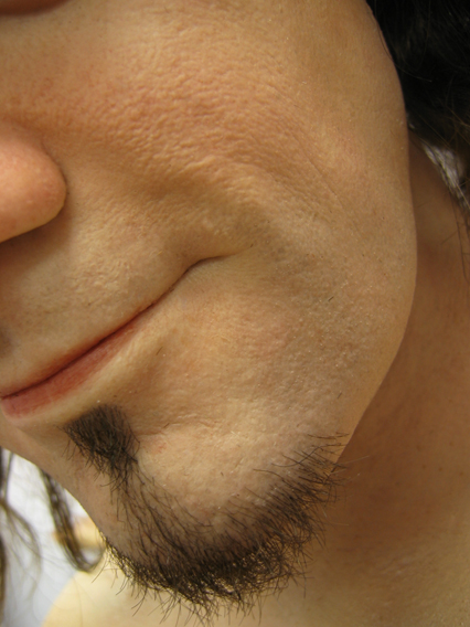23_Chin_close-up.jpg
