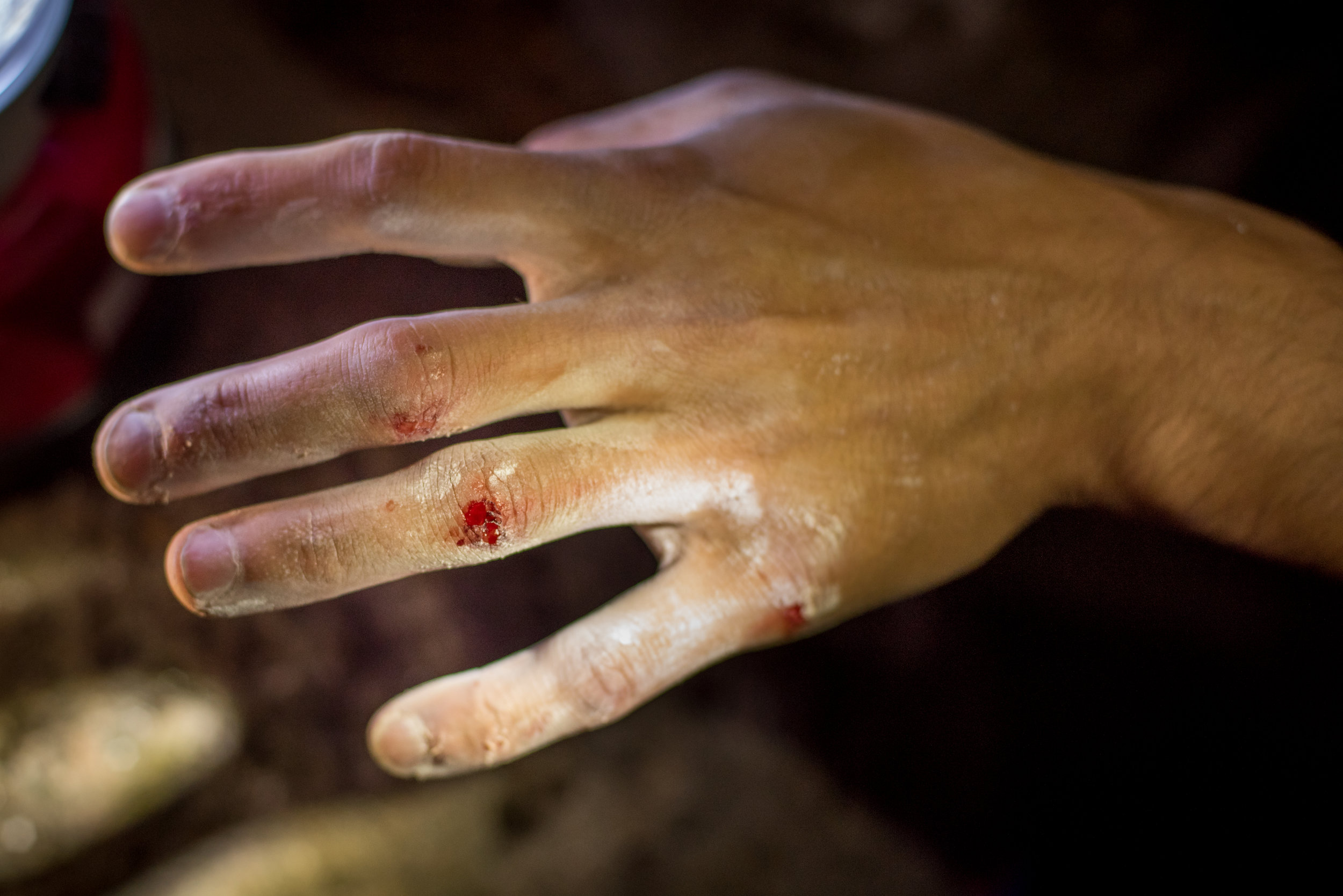 Blake got a nice knuckle-scraper on 'The Raven'. You're not climbing hard until you're bleeding, right?