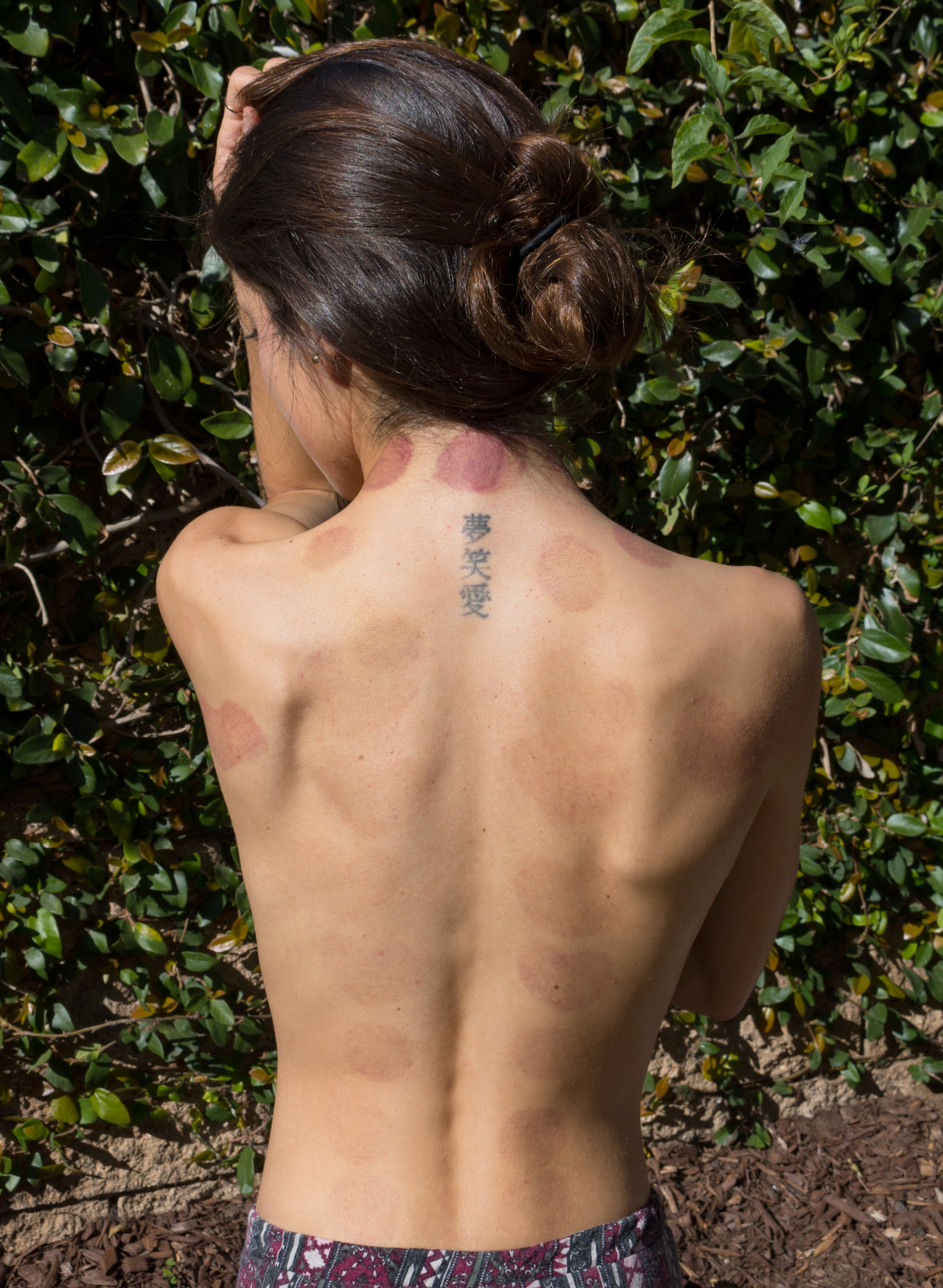 Cupping session done by  Gaia Acupuncture  located in San Diego, California.