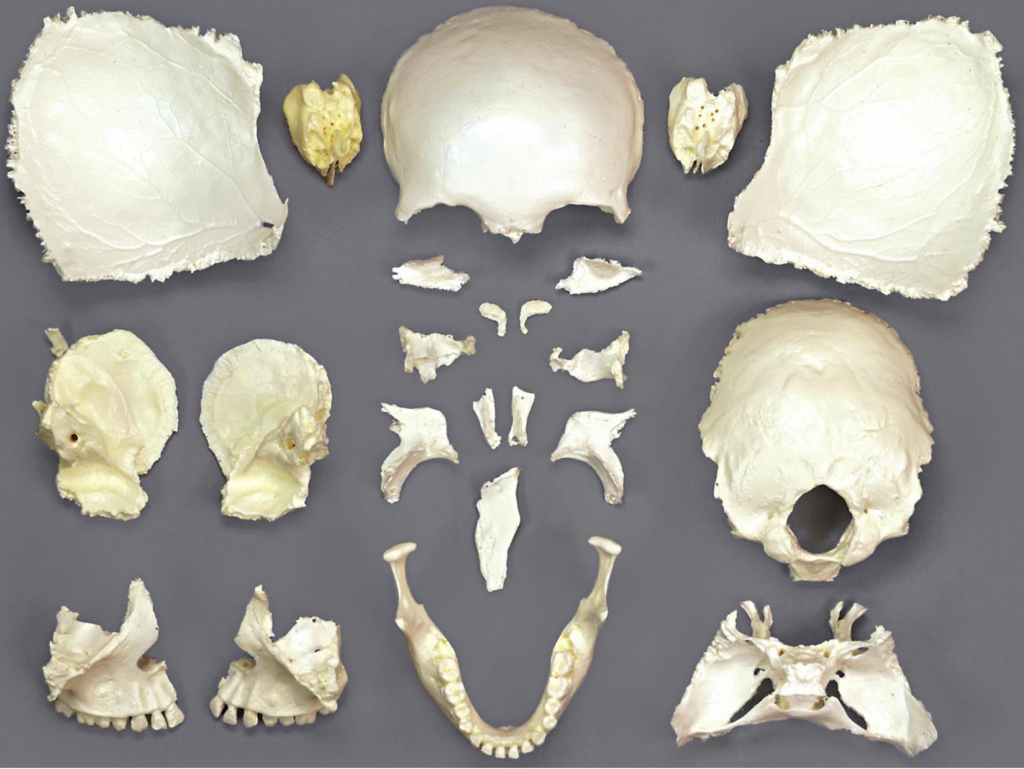 osm32p_disarticulated-female-skull.jpg