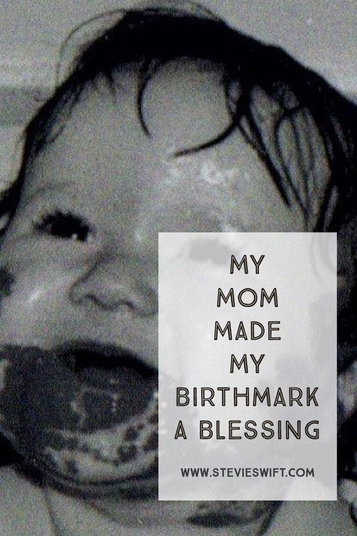 How My Mom Made My Birthmark A Blessing