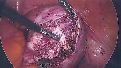 Fibroid being removed