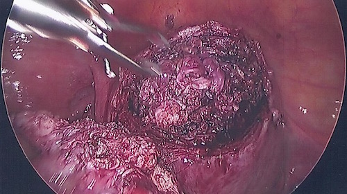 Uterus after fibroid removed