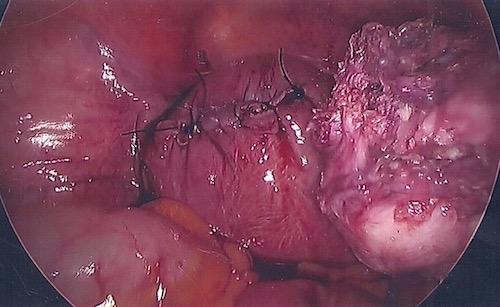 uterus closed at end