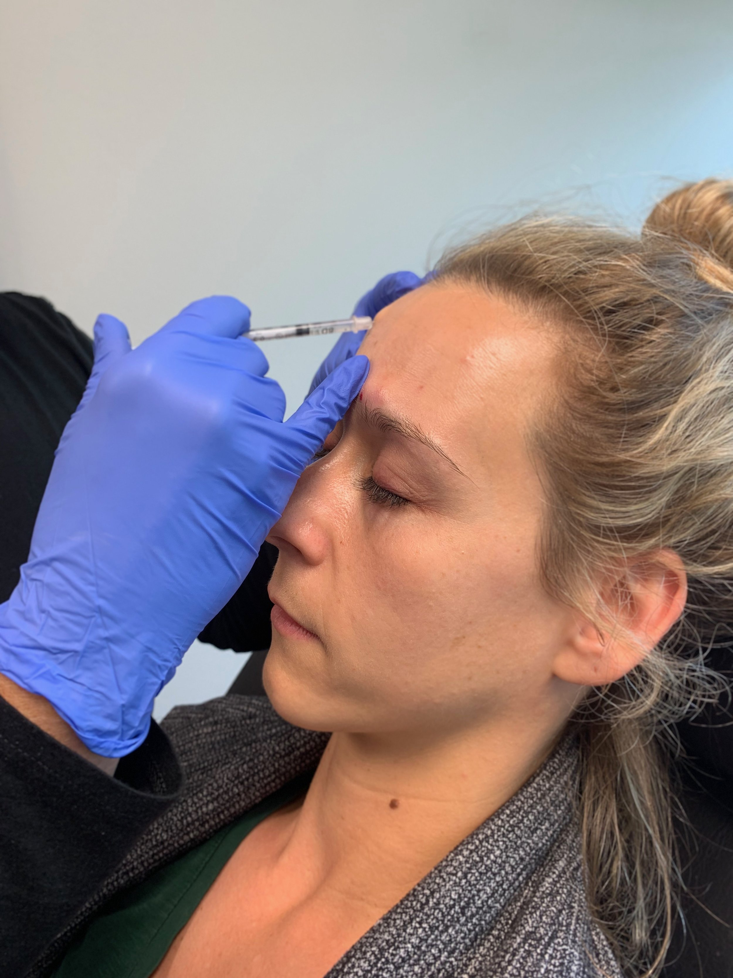 Aesthetica Med Spa Fire & Ice Facial + My Botox Experience