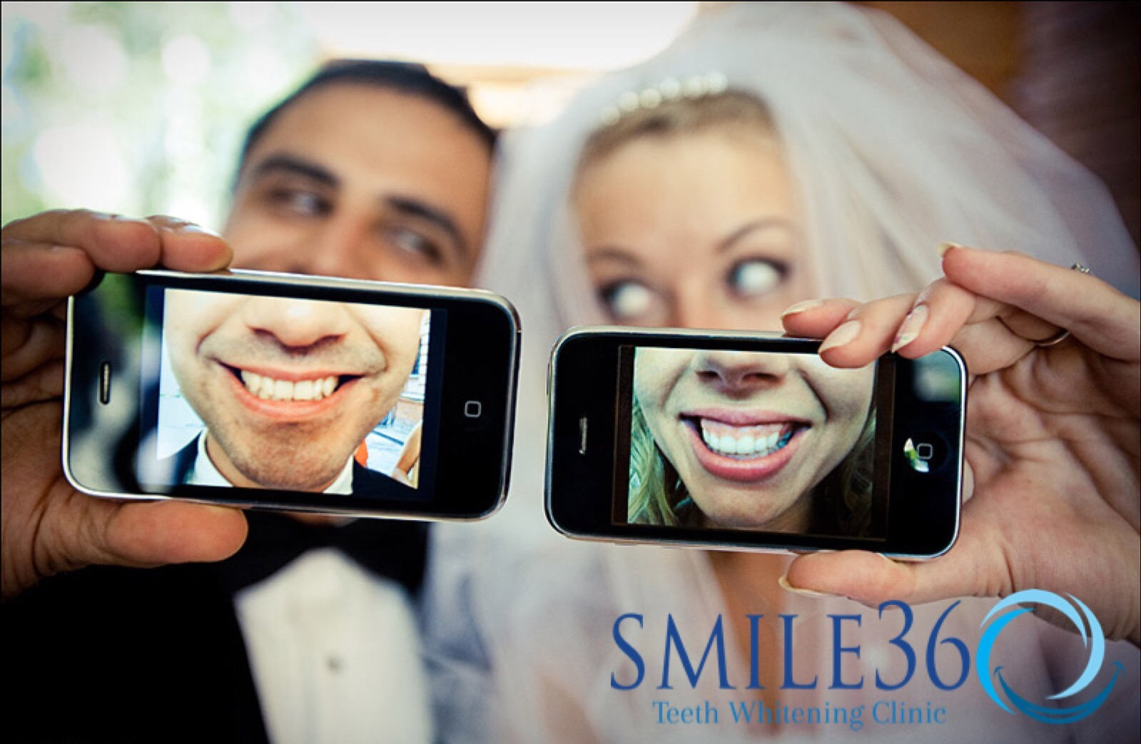 smile360 teeth whitening dermaenvy skincare
