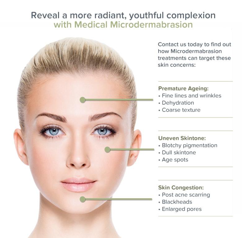 microdermabrasion facial skincare moncton halifax