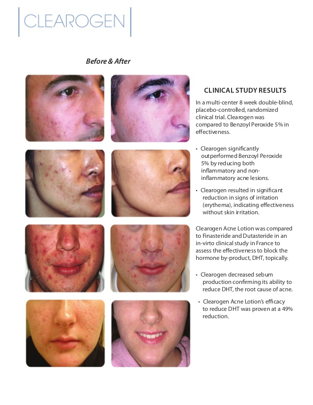 Acne Treatment Nova Scotia Halifax Dartmouth Bedford