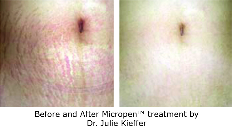 stretchmarks micro needling before after