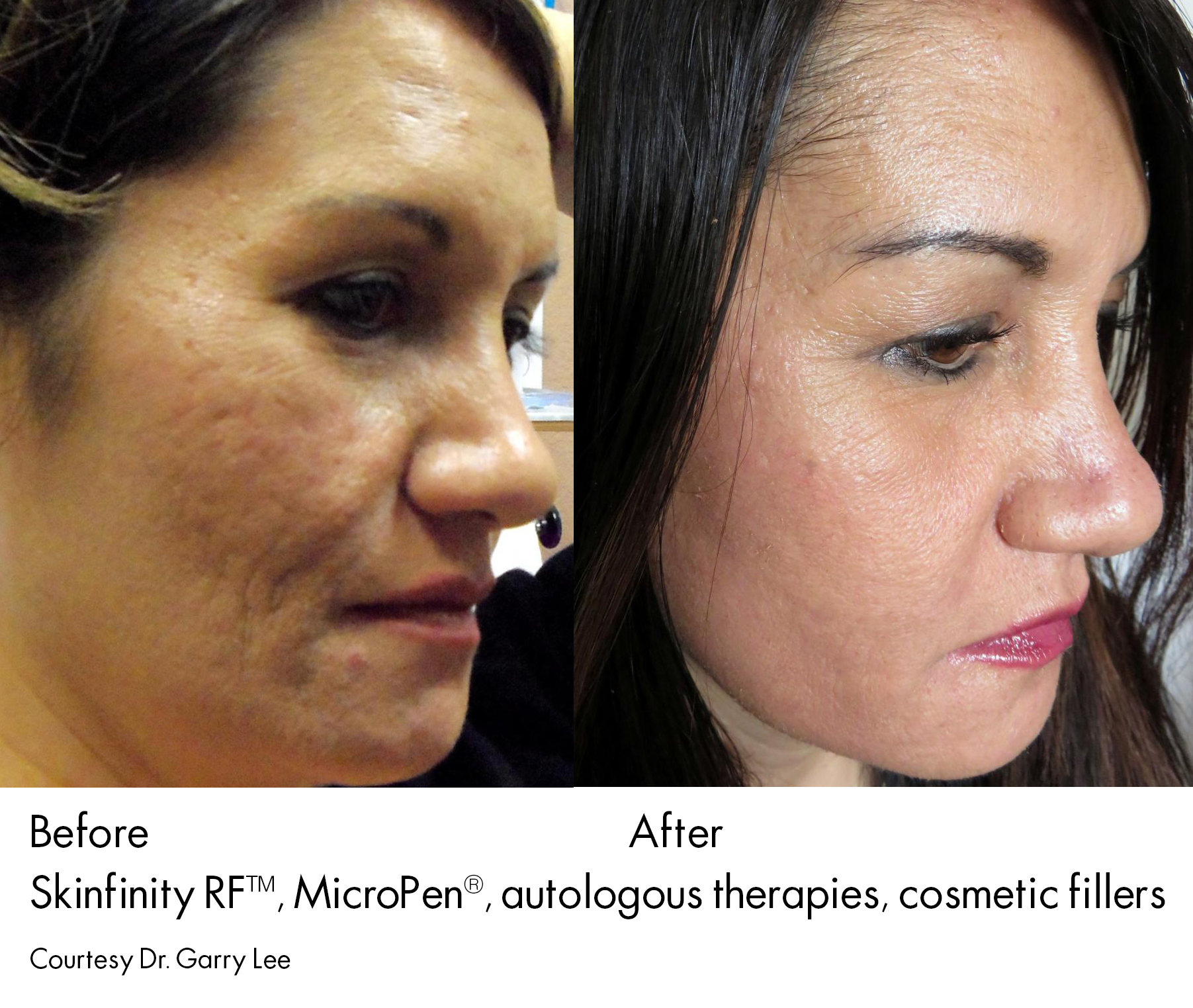 face micro needling before after
