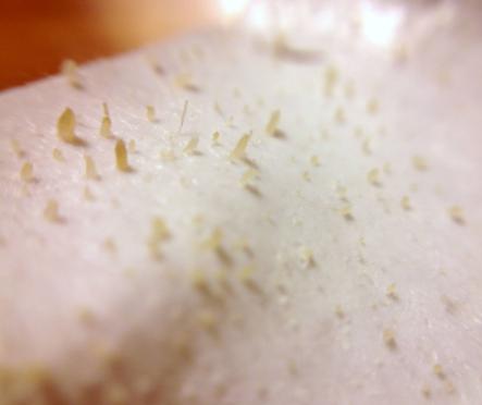 Sebaceous filament on a pore strip