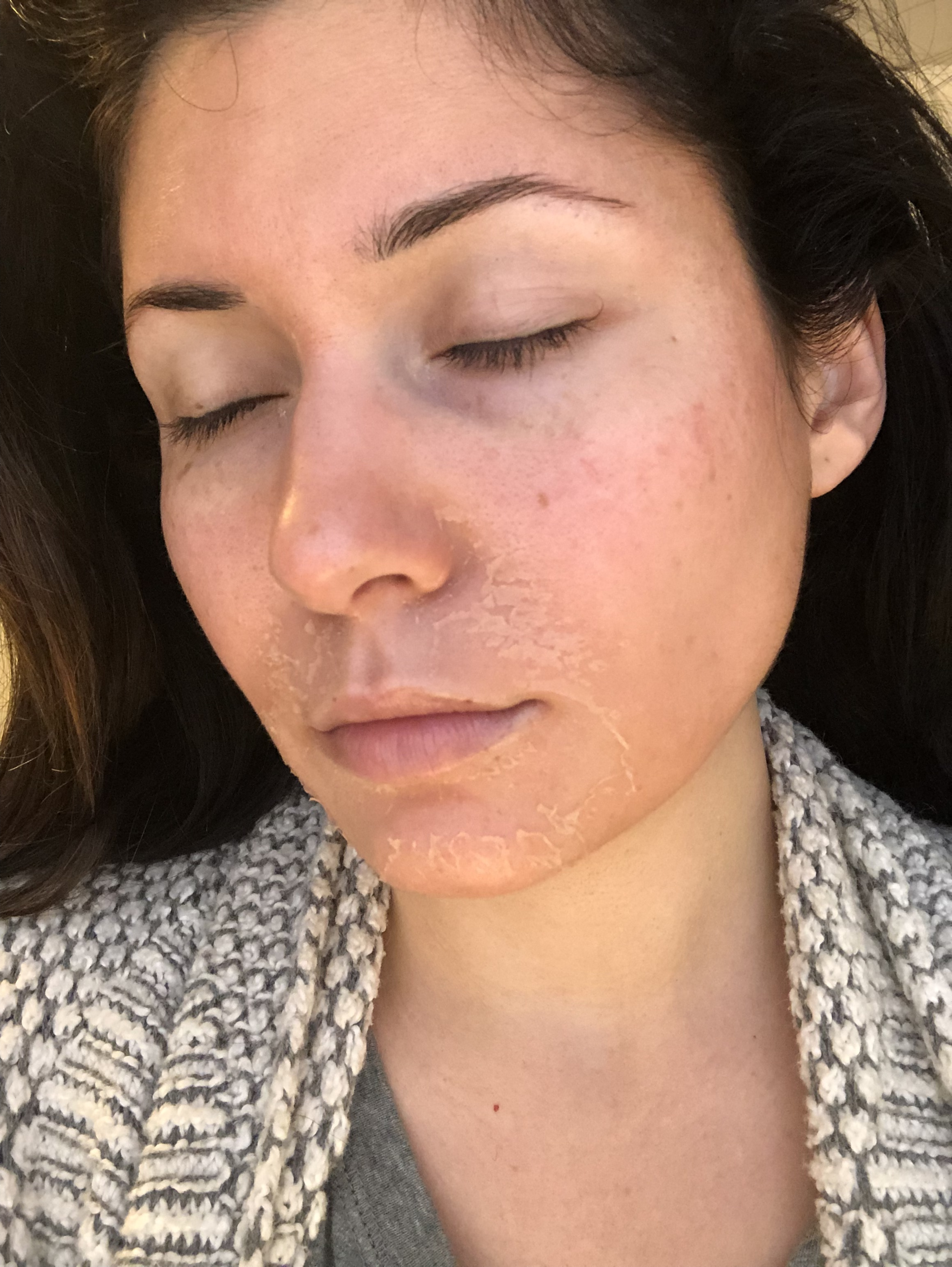 Day 4 - Mouth, nose and then cheek peeling!