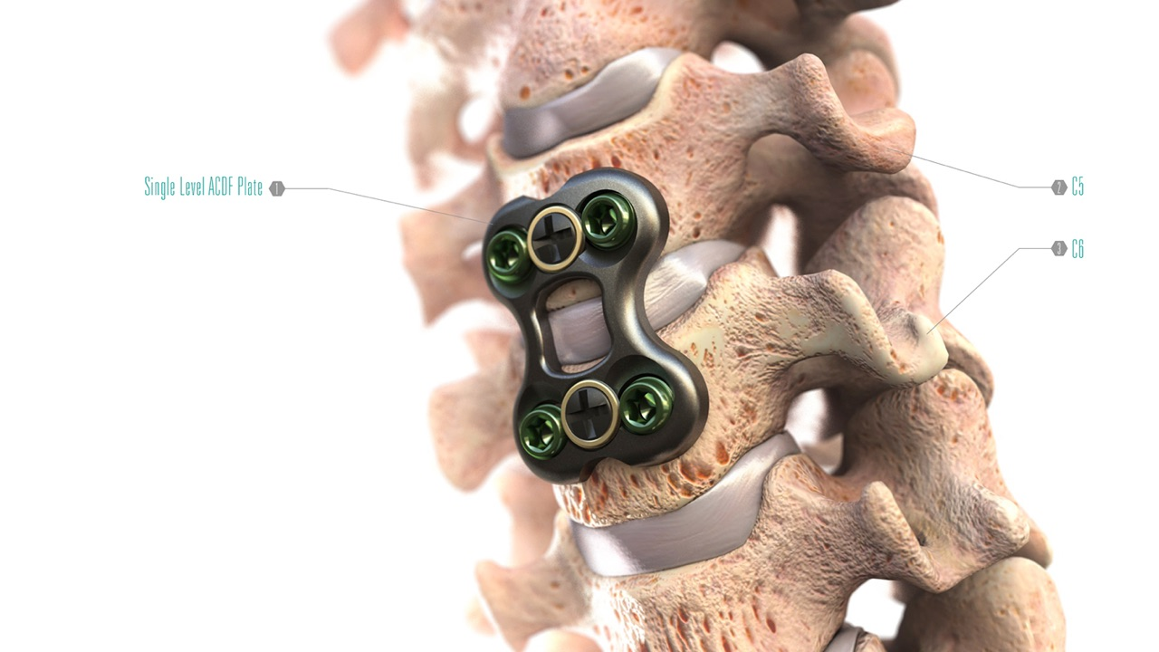 Medtronic Spine App  Find information by using the spine as your guide. Pull up videos and images for products and techniques.