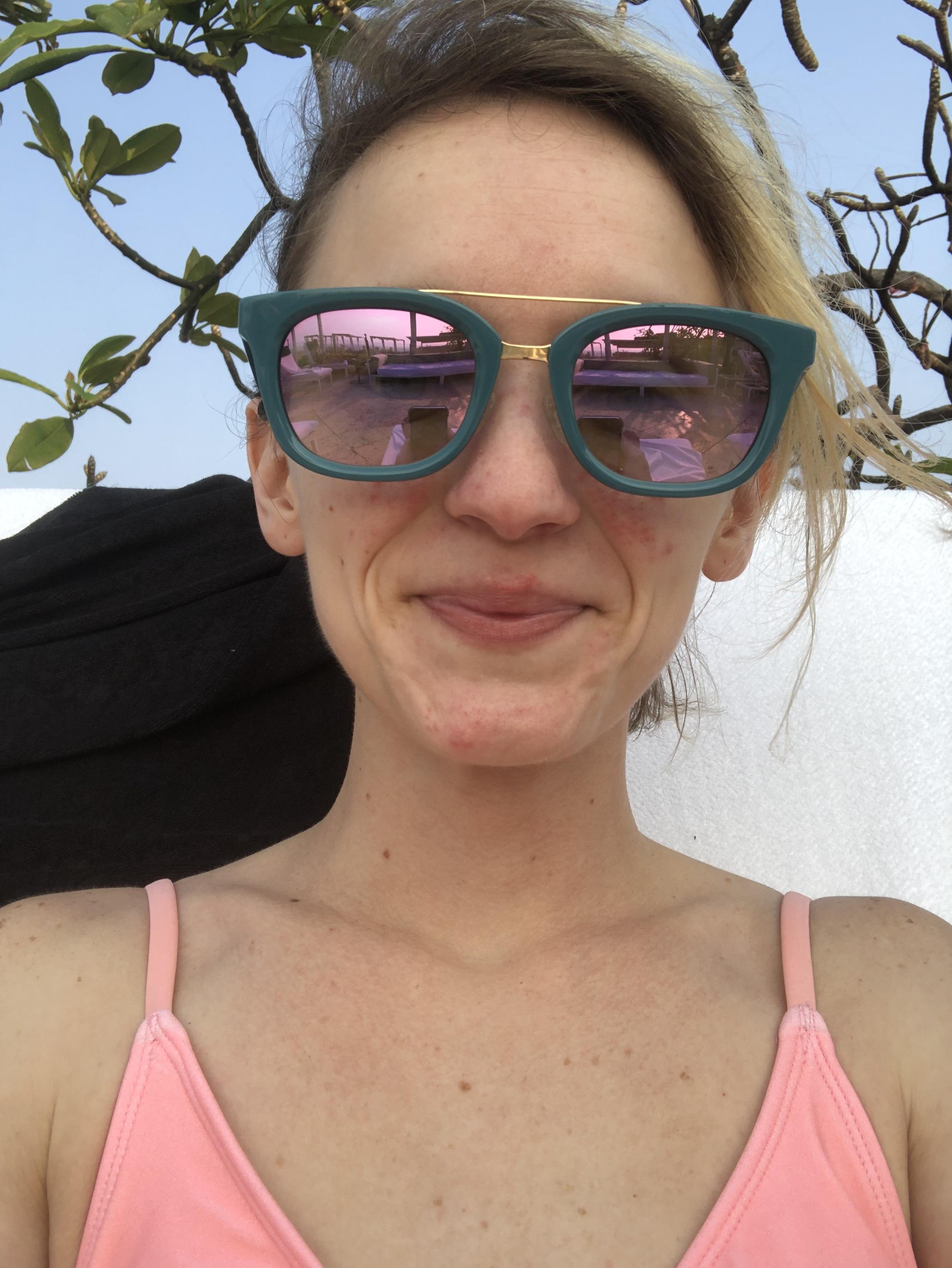 Me, mid-sunburn.