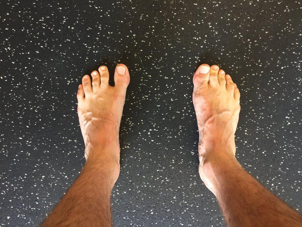 Feet Swollen Feet