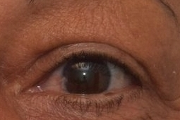upper eyelid lift blepharoplasty postop.jpg