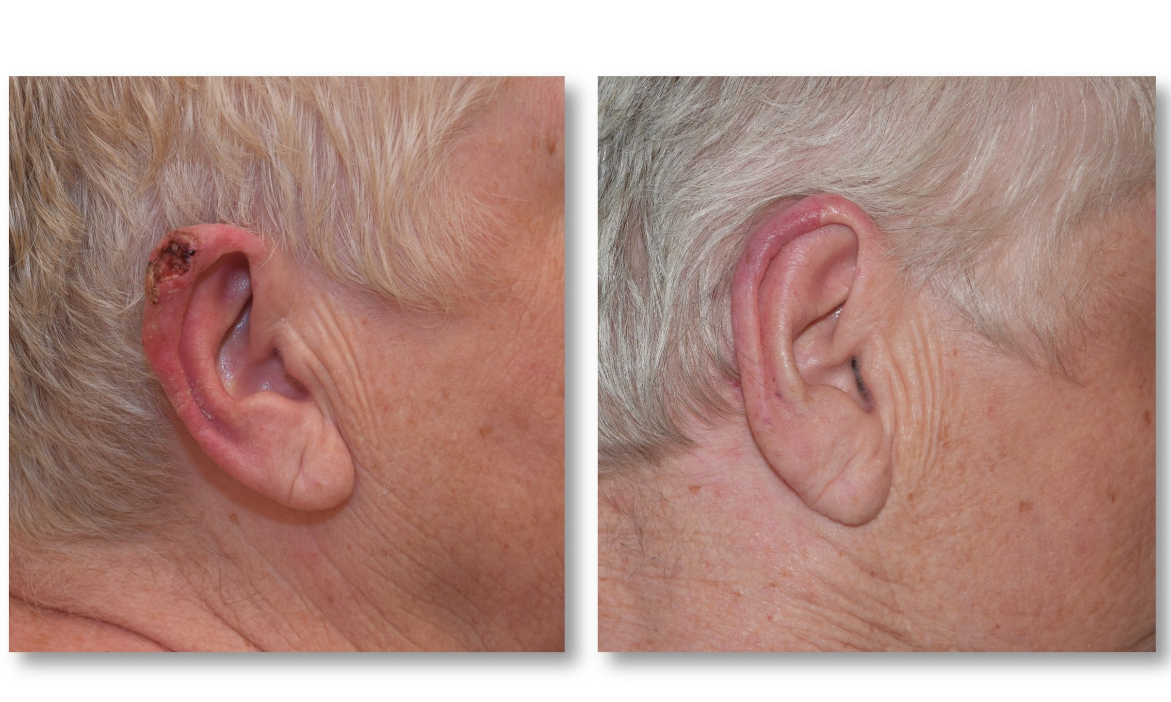 Ear Reconstruction with postauricular flap - This patient has squamous cell carcinoma skin cancer on the ear. The cancer was resected and the ear reconstructed with a postauricular flap. On the right, the ear is seen several weeks later with a normal appearance and cancer cured.