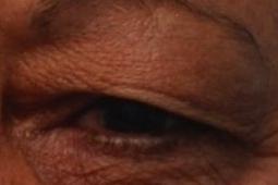 upper eyelid lift blepharoplasty preop.jpg