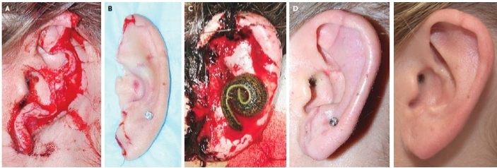 Ear Replant - One of the most technically difficult and demanding operations is this example of ear replant, published by Dr. Sullivan and Dr. Taylor in the New England Journal of Medicine. Fewer than fifty successful operations such as this have been reported around the world. Dr. Taylor and Dr. Sullivan successfully restored this patient's ear after a dog bit injury. The ear and the blood vessels were reattached using super microsurgery and a high powered microscope. The leech, seen in the middle image, was necessary to reduce venous congestion while the body restored blood flow. On the far right, the ear is seen several months later with a normal appearance.