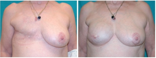 Delayed Breast Reconstruction with Breast Implant - Dr. Sullivan and Dr. Isik have conducted research and published information on breast reconstruction (Plastic and Reconstructive Surgery. 2008;122(1):1493-1498), including information on the timing of implant based breast reconstruction. This patient underwent delayed reconstruction with a tissue expander followed by a breast implant. Preoperatively (left) after mastectomy and radiation for breast cancer. Postoperatively (right) after tissue expansion and exchange for a permanent breast implant and before nipple and areola reconstruction.