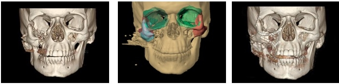 """Repair of Zygomatic Complex (ZMC or """"Tripod"""") fractures - This is an example of a 3D CT scan demonstrating a right zygomaticomaxillary complex (ZMC) or """"tripod"""