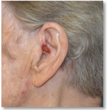 squamous cell carcinoma ear 2.jpg