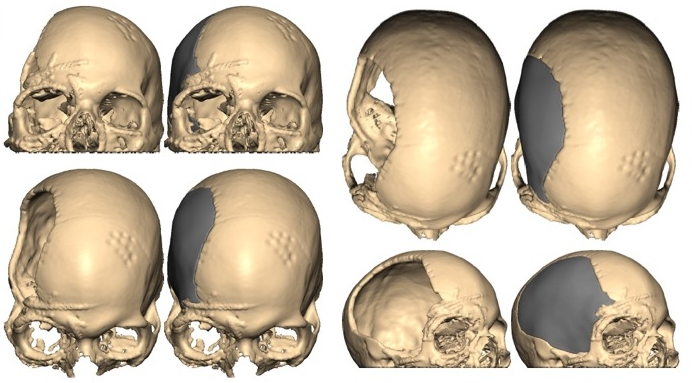 Cranioplasty with 3D planning and 3D printing of Cranial and Facial Implants - Patient with extensive facial fractures and skull defect who underwent reconstruction and cranioplasty following careful 3D planning and 3D printing of a custom cranial and facial implant with Dr. Sullivan and Dr. Taylor.